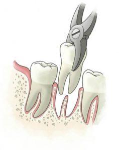 Burnos chirurgija dantų traukimas