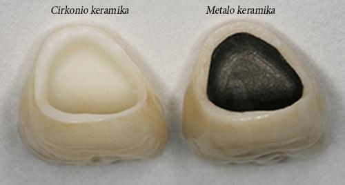 Metalo keramika ir cirkonio keramika