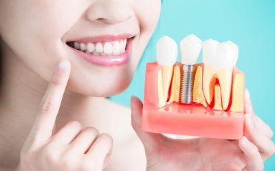 Dantų implantai: gijimo laikotarpis. Ką reikia žinoti?