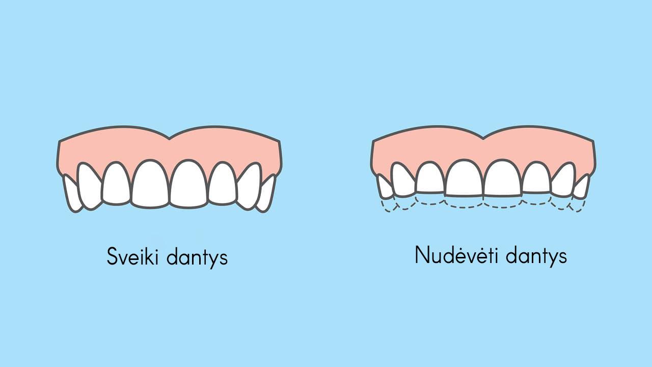 Dantų griežimas